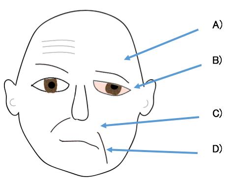 麻痺 ベル ベル麻痺(特発性末梢性顔面神経麻痺)