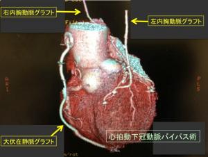 図1 冠動脈バイパス術