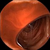 「小腸カプセル内視鏡」実際の症例